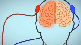 تی دی سی اس TDCS، تحریک الکتریکی مغز
